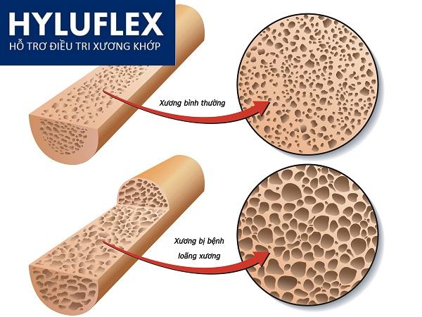 Sức khỏe, đời sống: Nguy cơ loãng xương ở bệnh nhân lupus ban đỏ Nguoi-benh-lupus-ban-do-co-nguy-co-loang-xuong-cao(1)